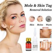 Skin Mole Removal | Skin Care for sale in Kilimanjaro, Moshi Urban
